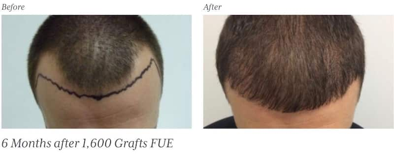 The Holborn Clinic Before & After | Hair Transplant Surgery